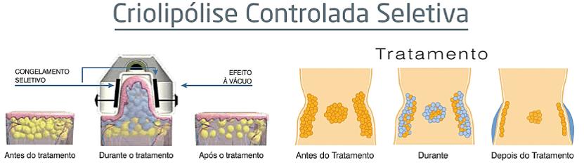 criolipolise-controlada-seletiva